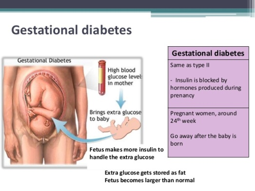 cdiabetes-39-638